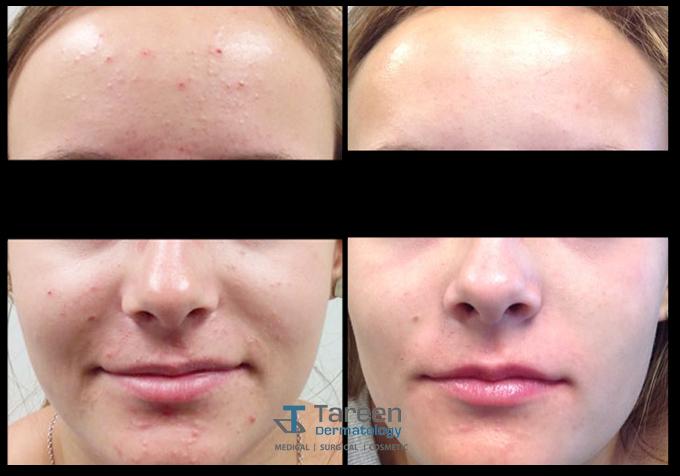 Acne   Tareen Dermatology   Roseville Minnesota
