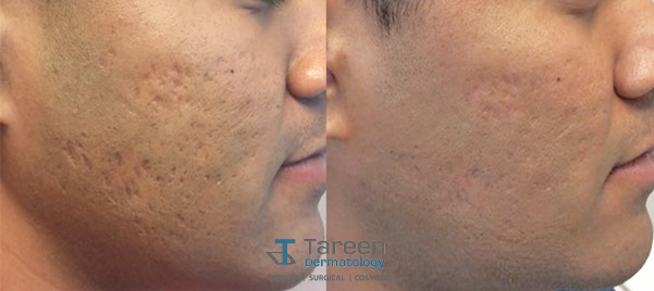 Acne Tareen Dermatology Roseville Minnesota