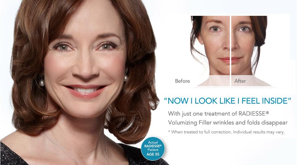 Radiesse Dermal Filler | Tareen Dermatology | Roseville