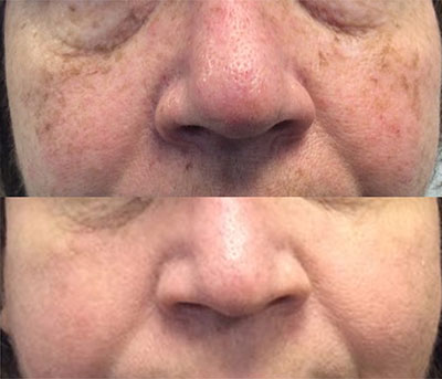 PICO Genesis™ Brown Spot Treatment | Tareen Dermatology