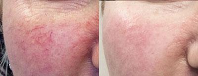 Rosacea Tareen Dermatology Roseville Minnesota