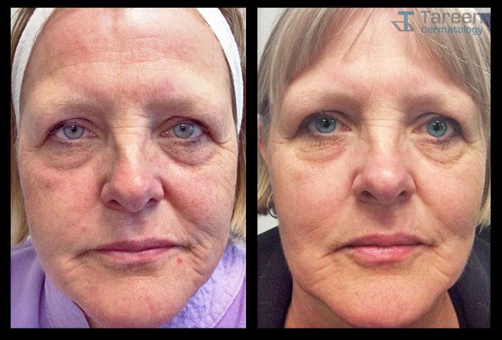 Co2 Laser Resurfacing Tareen Dermatology Roseville Minnesota