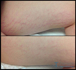 Stretch Mark Treatment Tareen Dermatology Roseville Minnesota