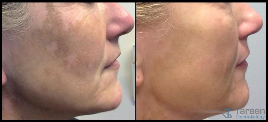 Vitiligo Tareen Dermatology Roseville Minnesota