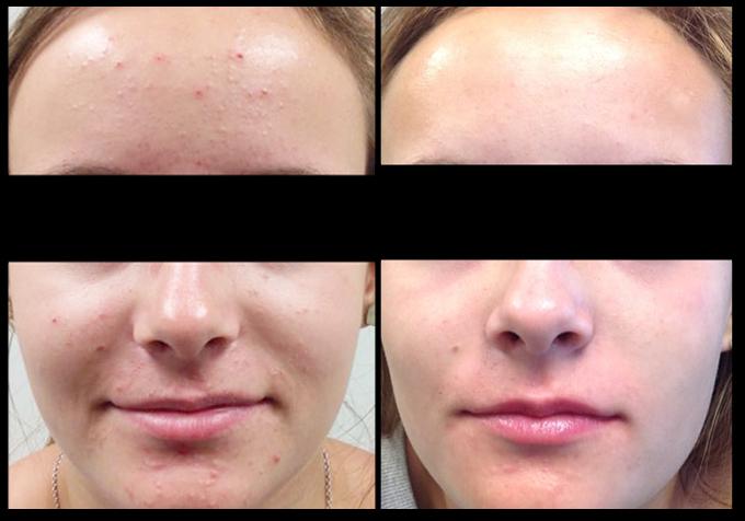 Chemical Peels | Tareen Dermatology | Roseville Minnesota
