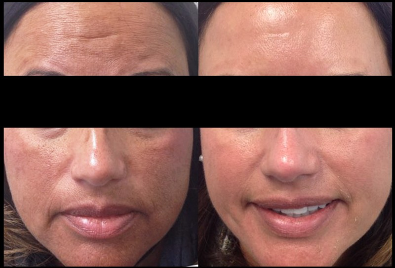 Before and After Melanage Mini-Peel